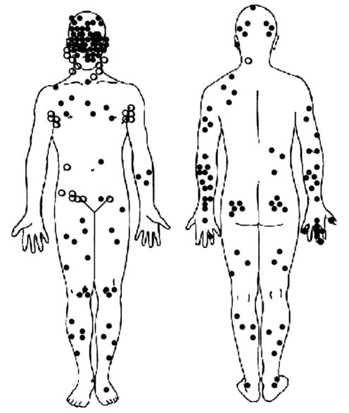 Where MCC occurs on the body