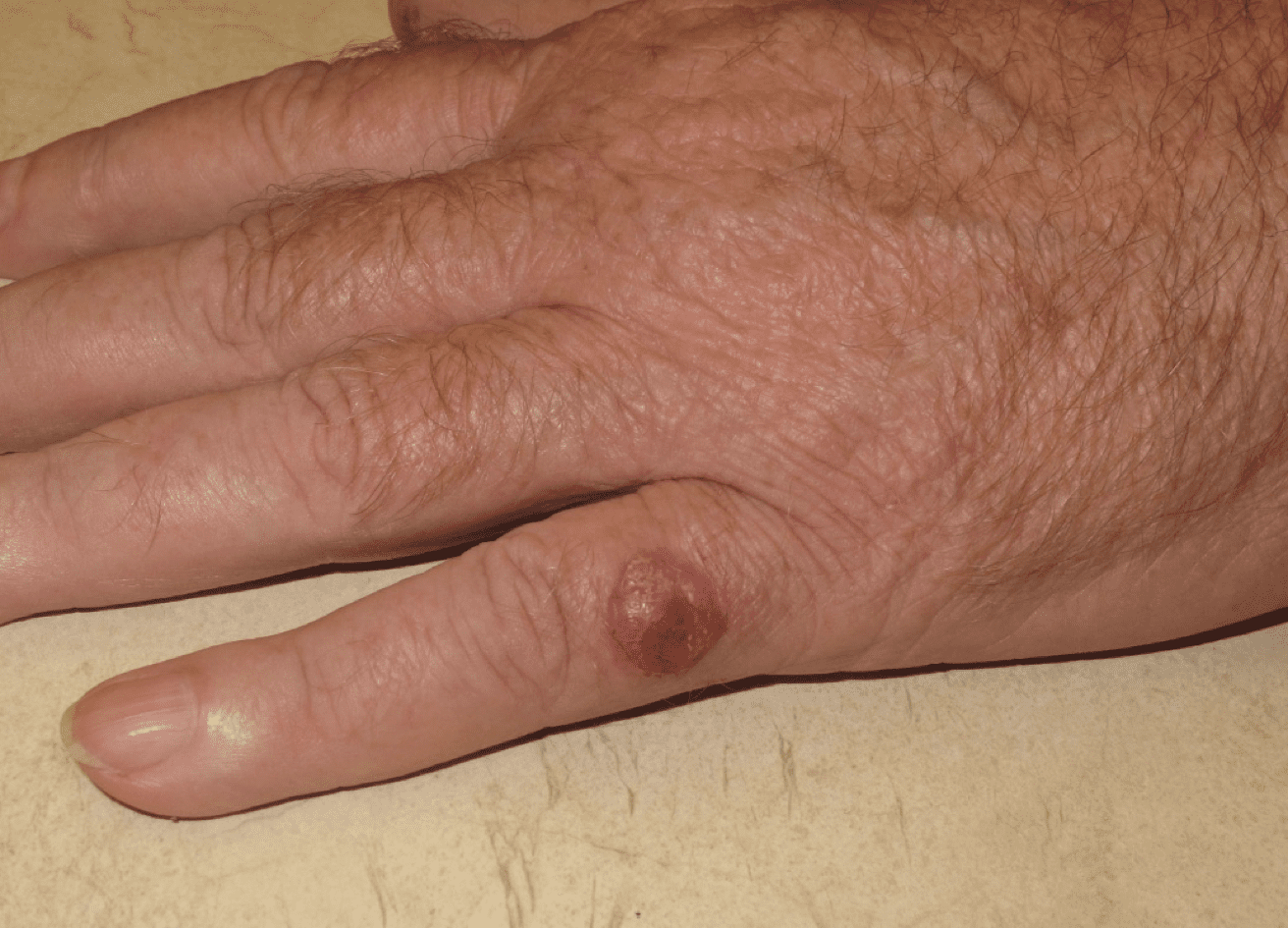 Picture of a Merkel cell carcinoma arising on the fifth digit of the left hand.