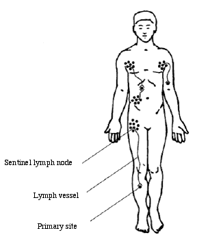 Schematic representation of the lymphatic system. MCC cells can travel from the primary site, through the lymph vessels to the sentinel lymph node. Note that MCC on the leg will likely drain to the inguinal lymph nodes on the same side; an MCC on the arm will drain to the axilla (armpit); MCC on the trunk can drain to the closest axilla or inguinal bed, or multiple beds unpredictably; a primary on the face may drain under the chin (submandibular) or in front of the ear (pre-auricular). Adapted from Perrott, 2003, with permission.