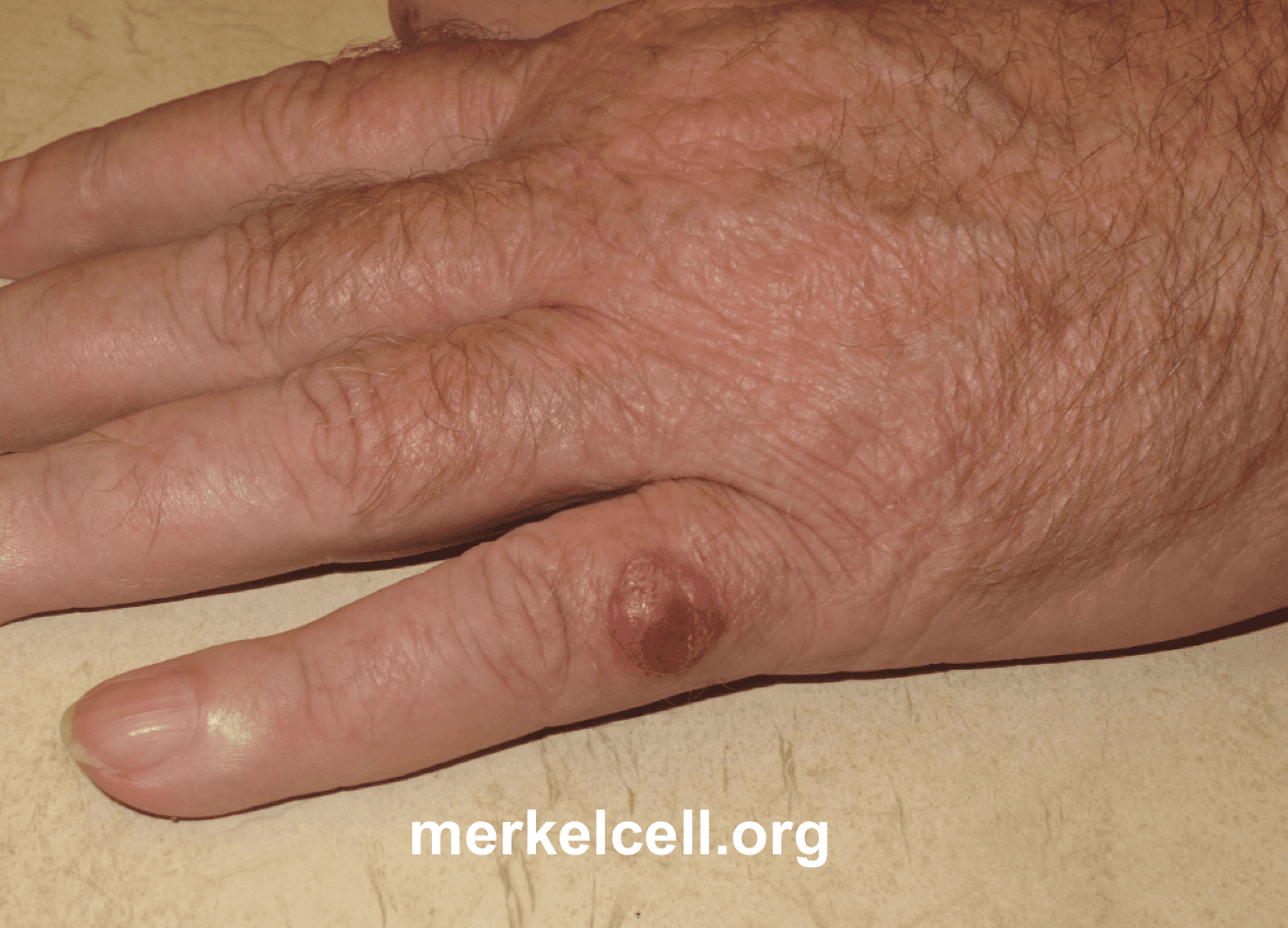 Clinical Photos of Merkel Cell Carcinoma | Merkel Cell Carcinoma